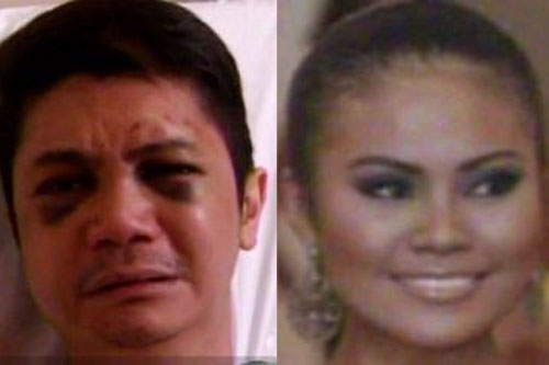 (Left) Actor-Host Vhong Navarro at the hospital after mauling inside Denice Cornejo's condominium; (right) Roxanne Cabanero, who claims to have been raped by Navarro