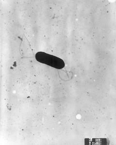 479px-Listeria_monocytogenes_PHIL_2287_lores
