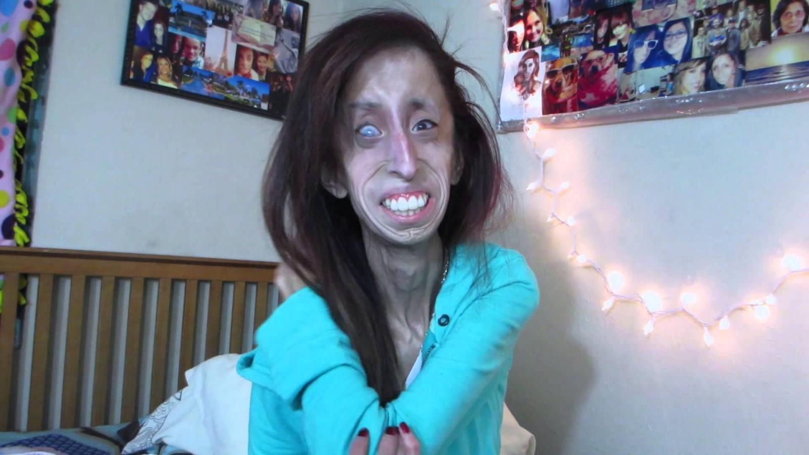 Lizzie Velasquez. Screenshot from YouTube.