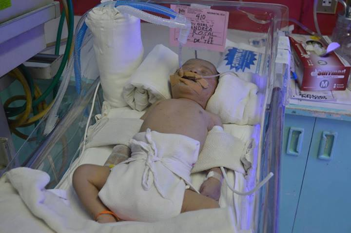 Baby Diona Andrea Rosal struggles to survive. (Photo:  Facebook page, Free Andrea Rosal Movement)