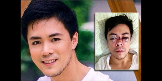 Photo: Instagram account of Lance Raymundo