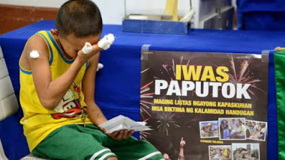 Fireworks-related injury in the Philippines (Photo courtesy of Barako News and DOH)