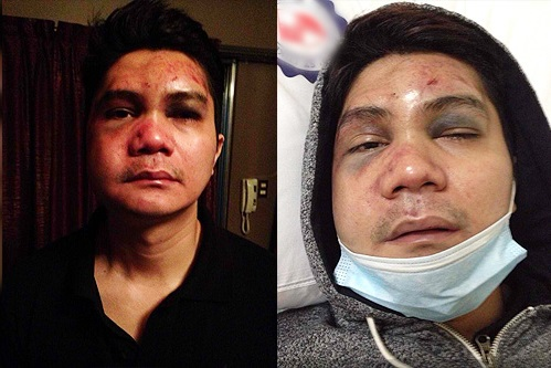 Actor-Host Vhong Navarro badly beaten up by Cedric Lee and his group.