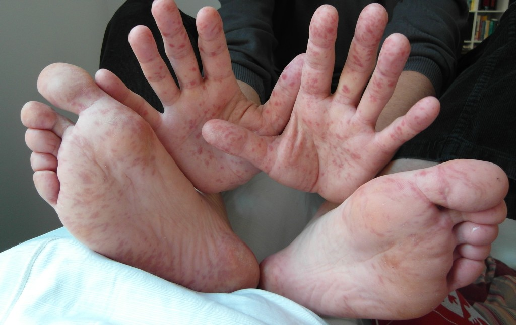 Hand, foot, and mouth disease (Wikipedia photo)