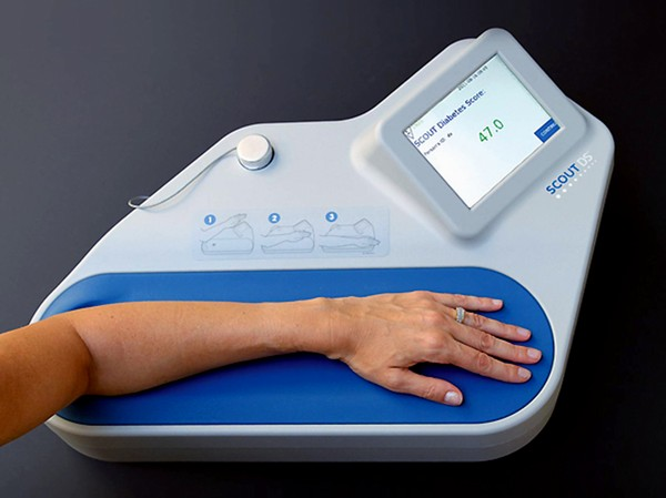 Scout Diabetes Screen machine, a diabetes-screening device that uses visible light to fluoresce, detect and measure biomarkers present in the skin associated with pre-diabetes and type 2 diabetes.  (Photo from Miraculins' website)