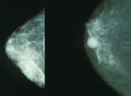 Normal (left) versus cancerous (right) mammography image (Photo by Wikimedia Commons, Public Domain)